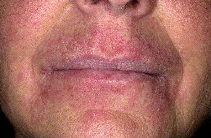 التهاب الجلد التماسي الارجي