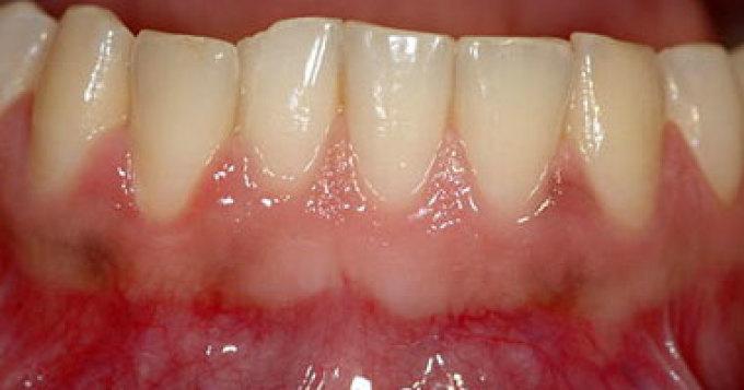 اسنان الفك السفلي