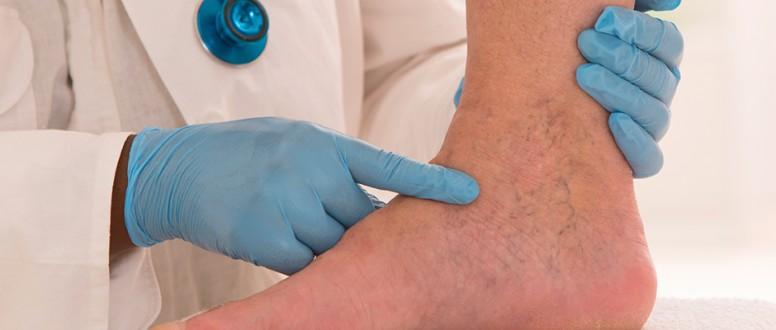 جلطات الأوردة العميقة في الساق وأخطارها
