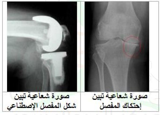 علاج احتكاك وإهتراء المفاصل في الأردن