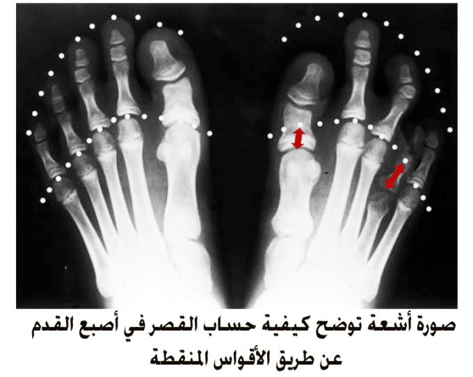تطويل قصرأصابع القدم
