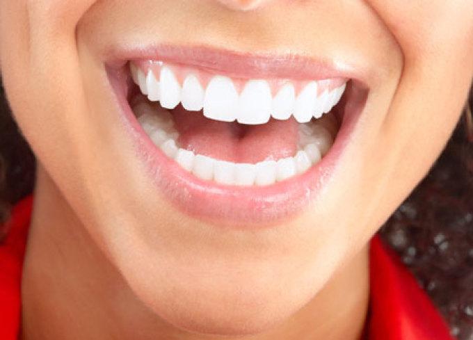علاقة صحة الاسنان واللثة بأمراض القلب
