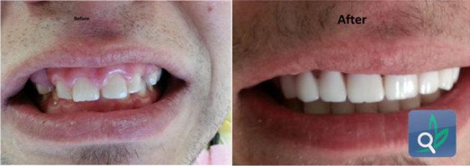 الزركون في طب الاسنان