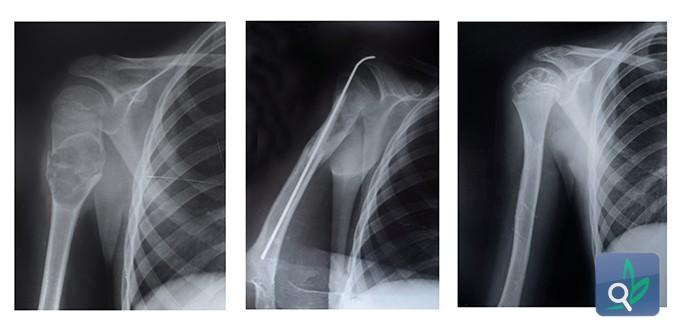 أسئلة شائعة عن هشاشة العظام