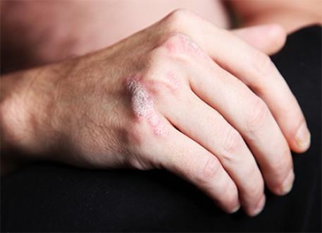 الصدفية مرض جلدي يُثير القلق