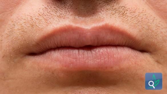 جفاف الفم أسباب وعلاجات متعددة