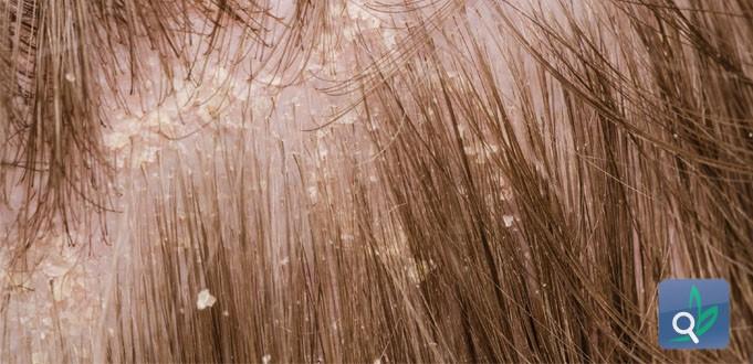 علاج قشرة الرأس وتساقط الشعر بالوصفات المنزلية - الجزء الأول