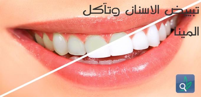 تبييض الأسنان : ابتسامة جميلة على حساب الأسنان