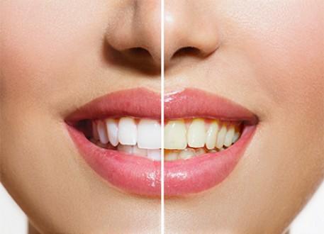 الزيركون فى عالم تركيب وتجميل الاسنان