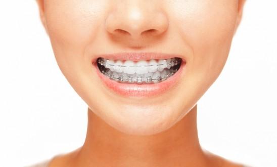 العلاج التقويمي للبروز الزائد للاسنان العلوية