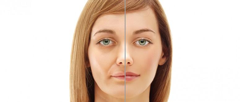 العصب السابع و تأثيره على الوجه