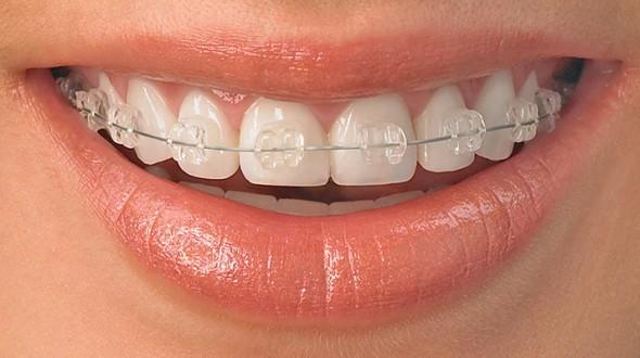مفاهيم خاطئة في طب تقويم الأسنان والفكين