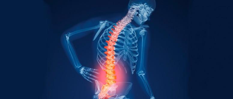 هشاشة العظام: متى يجب ان تُعالج؟