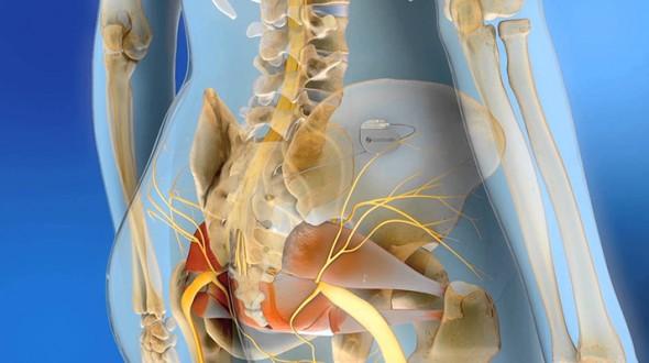 التقنيات الحديثة في علاج مشاكل التبوّل: تحفيز الاعصاب الجذعية (Sacral Neuromodulation)