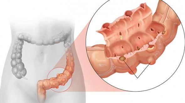داء الرتوج في القولون (Diverticulitis)