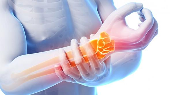 متلازمة عظام الرسغ