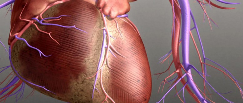 القلب الاحتقاني: أسباب، أعراض وعلاج