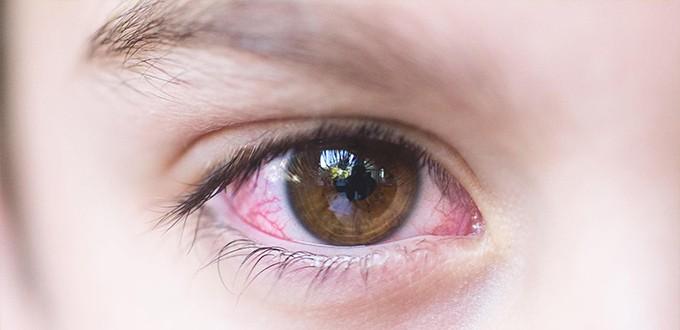 التهاب الملتحمة الاطفال؛ أسباب، أعراض،